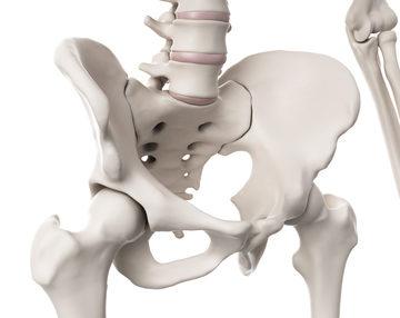 -股関節の痛み-