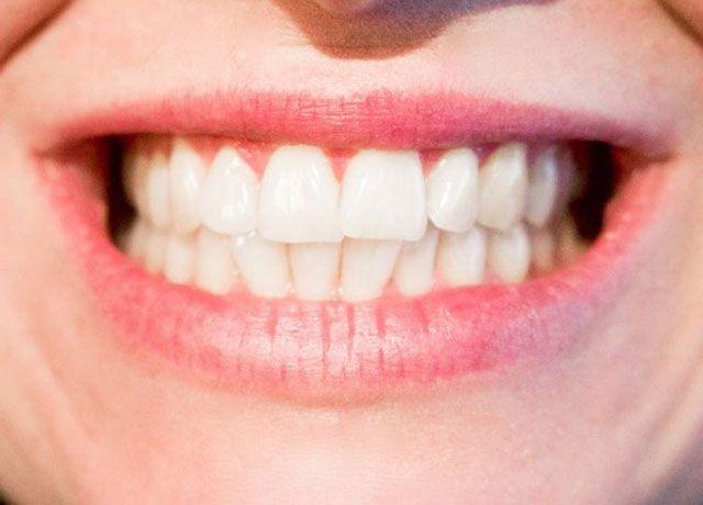 歯ぎしりの原因となるもの