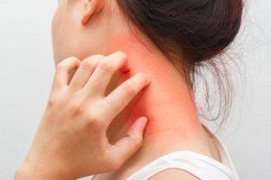 アレルギー除去-(NAET療法)
